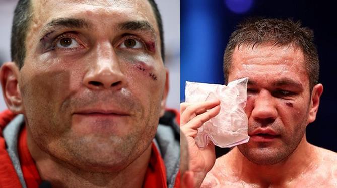 Тежък удар по Кличко! Целият боксов свят коментира, а феновете на Кобрата се забавляват!