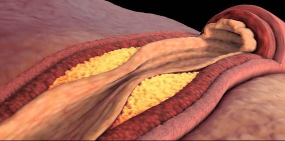 стимулатори на сърдечно-съдовата система