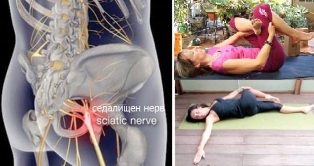 Как да освободим седалищния нерв? Два прости начини за облекчаване на болката (ВИДЕО)
