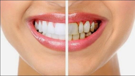 Ето един незаменим трик! Отделете по 5 минути дневно и кажете сбогом на зъбния камък, бактериите и лошия дъх