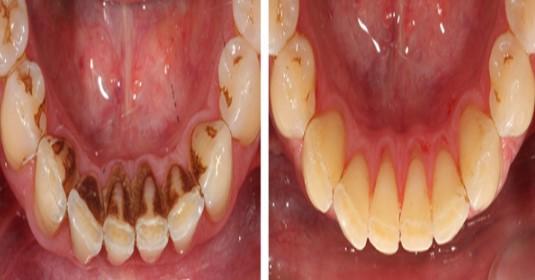 Само 2 съставки и зъбният камък изчезва. Няма нужда вече да хвърляте излишни пари по зъболекари