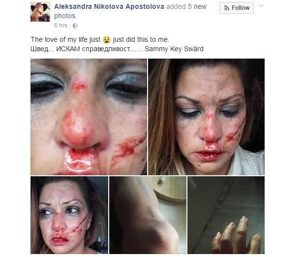 Певицата Сани Алекса жестоко пребита от приятеля си швед (СНИМКИ 18+)