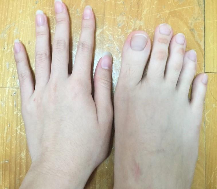 Тази жена е феномен - тя има пръсти на краката, които са подобни на тези на ръцете си. вижте колко предимства й дава това!