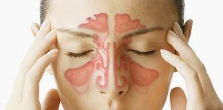 хроничен синузит