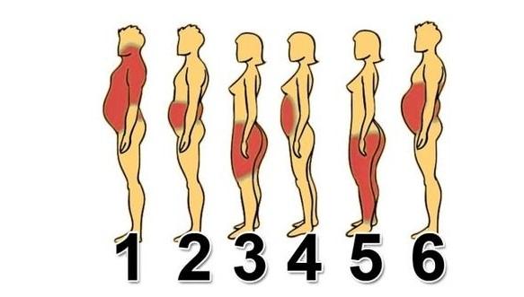 Определете своя тип затлъстяване и вижте как да се преборите с него (Графика)