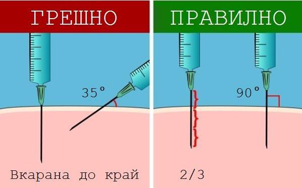 Всеки родител трябва да го знае: Ето как да поставите инжекция, ако не дай Боже ви се наложи (СНИМКИ)