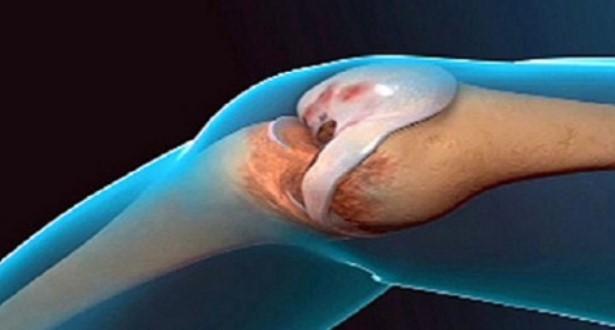 Народен лек остави лекарите безмълвни: Лекува костната тъкан и прави ставите като нови за отрицателно време