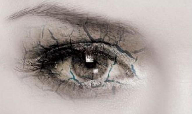Синдром на сухото око