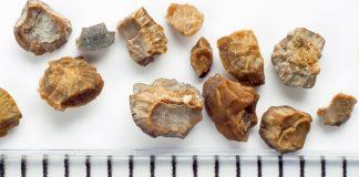 камъни в бъбреците