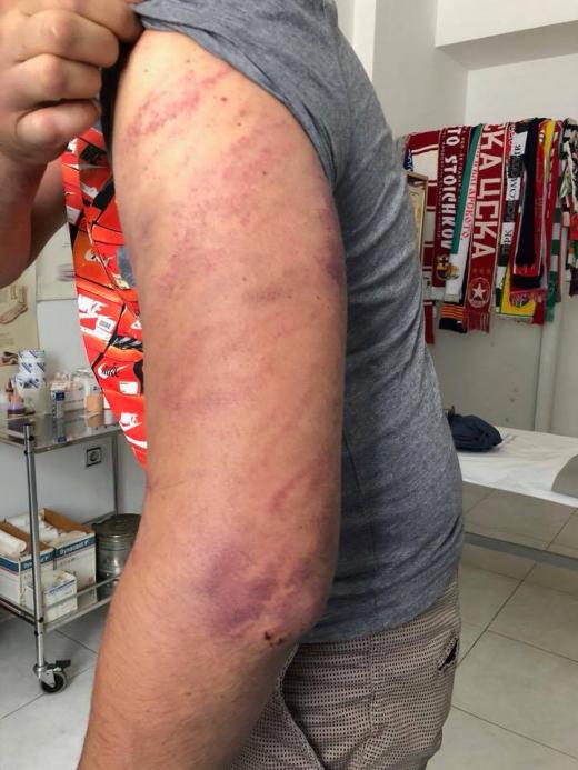Д-р Мазнейков би тревога: Мутри ограбиха и пребиха с бухалки момче и момиче на паркинг в София (ПОТРЕСАВАЩА СНИМКА)