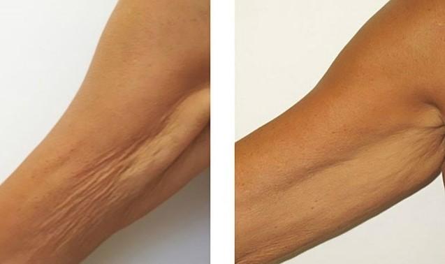 Тази паста накара пластичните хирурзи да треперят: Идва им краят, отпуснатата кожа остава в миналото