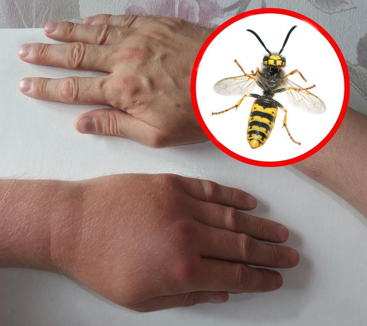 Как да разпознаем ухапванията от различни насекоми (СНИМКИ)