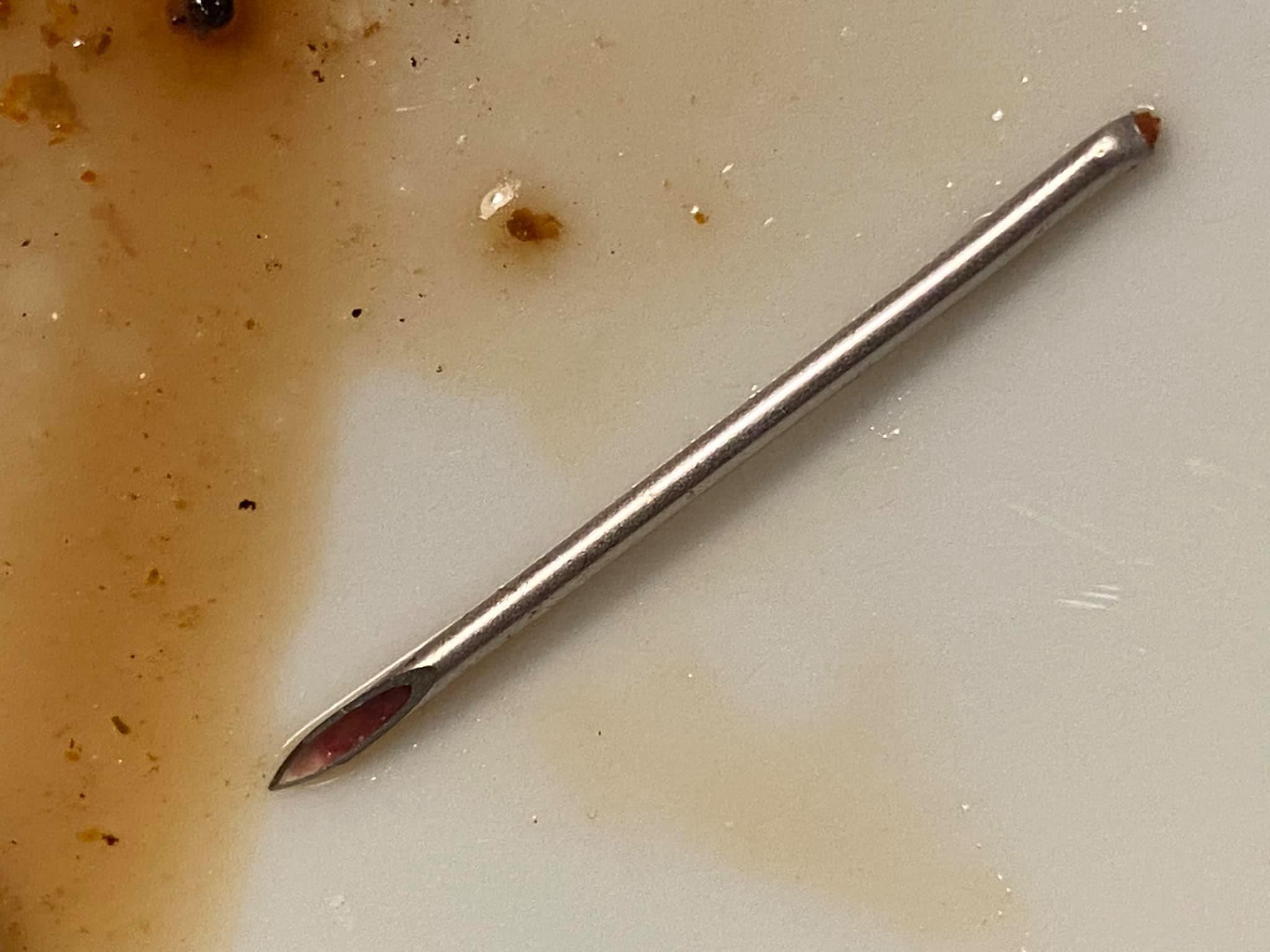 Какво месо ни продават? Дете откри 4-сантиметрова игла в пържолата си (СНИМКИ)