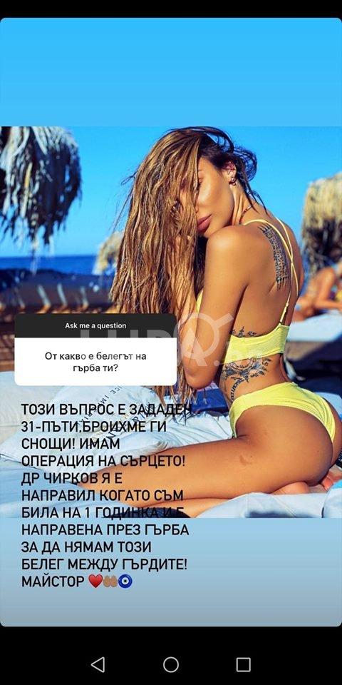 Моника Валериева оперирана от проф.Чирков