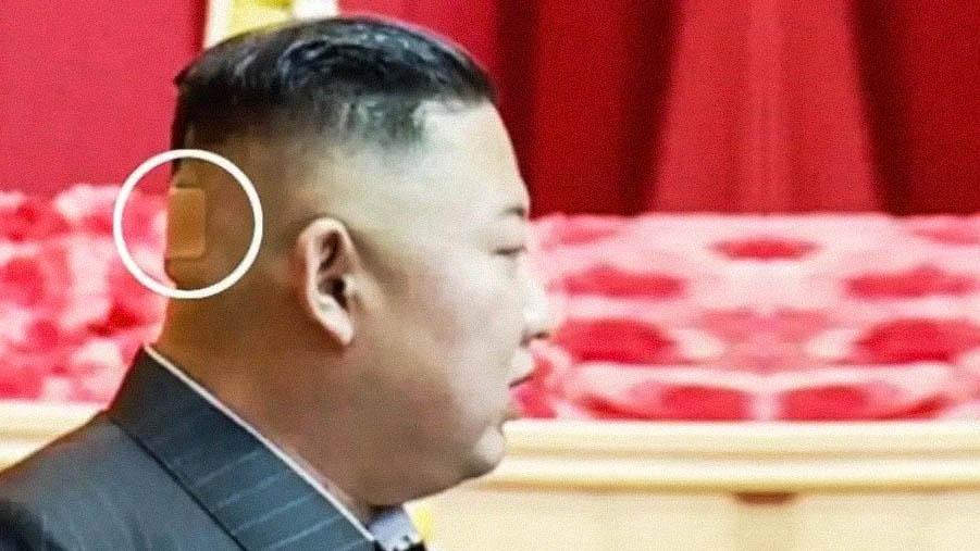 Ким Чен Ун лепенка